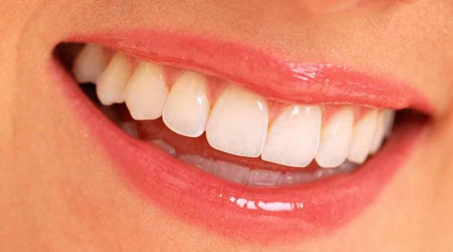 sourire3